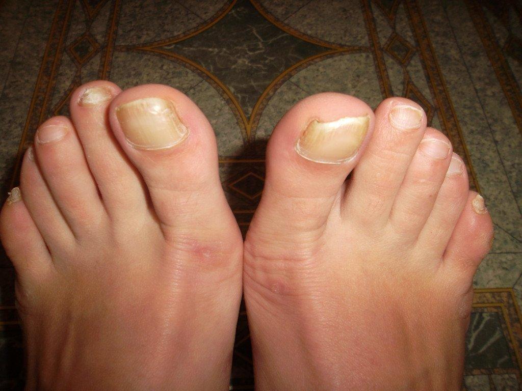Грибок ногтя на большом пальце руки лечение