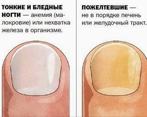 Что значит пожелтевшие ногти 180