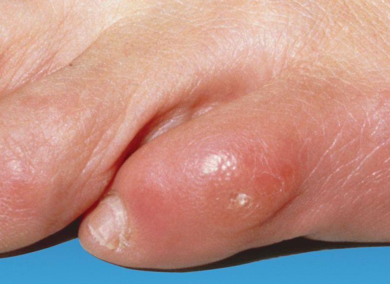 Как избавиться грибка на ногах между пальцами