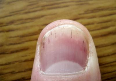 Если при диабете на ногтях темное пятно